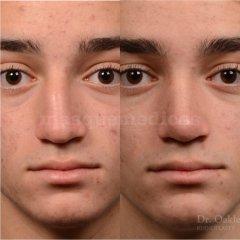 Septorrinoplastia masculina: nariz y tabique desviado - Doctor Mira