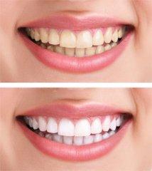 Blanqueamiento dental - Clínica Dental JLC - Servicios Dentales Exclusivos