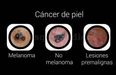 Cáncer de piel - Doctora Lidia Comba Pérez Pérez