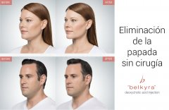 Belkyra  - Doctora Lidia Comba Pérez Pérez