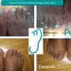 Hongos en las Uñas / Onicomicosis - Podomas. Centro de Recuperación Funcional Podológico