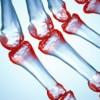 Enfermedades Autoinmune - StemMedic